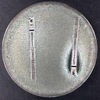 azole-resistant-aspergillus-fumigatus.jpg